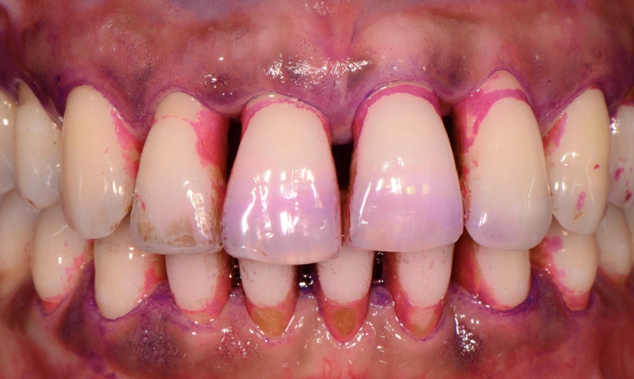 parodontite come curare